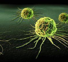 Многие народы научились лечить рак, не прибегая к официальной медицине. Порой, возможности народных средств удивляют. Например, в начале 20 века, русские знахари лечили рак легко и просто, и не считали его какой-то особой, тяжкой болезнью