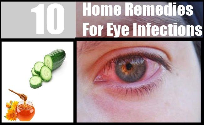 Eyes are most sensitive part of our body that needs proper care. Eye infections are very painful and can cause eye redness, swollen eyes and ...