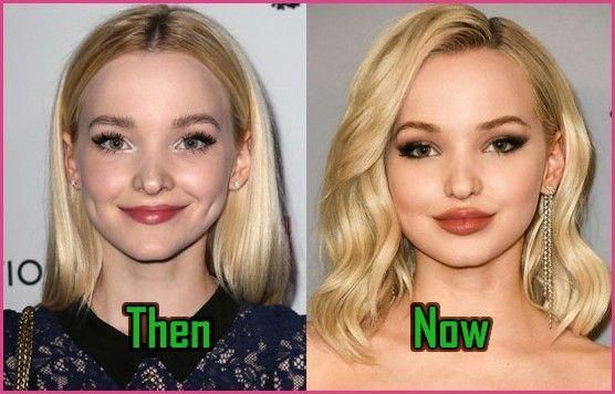 Dove Cameron Plastic Surgery Lips Injection Before After