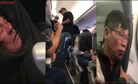 Man Is Forcibly Removed From United Airlines Flight Because It Was Overbooked