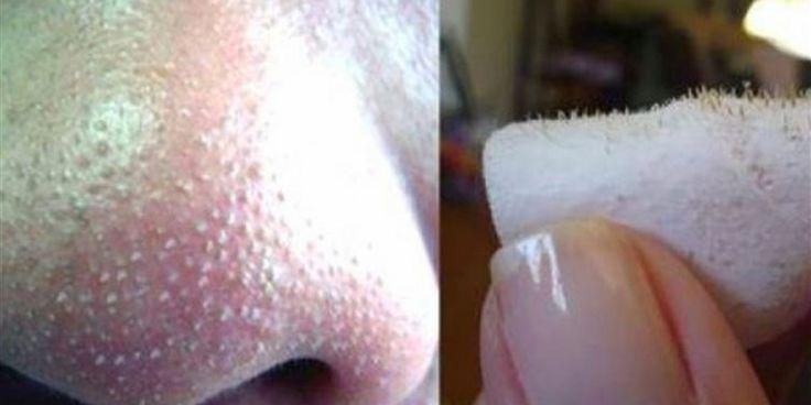 dauerhaft entfernt. So kann jede Pore buchstäblich wieder tief durchatmen. – Haare und Beauty