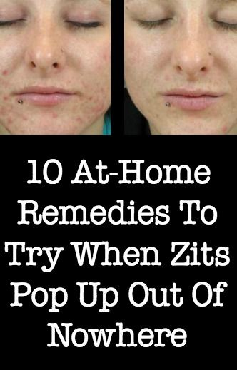 10 At-Home Remedies To Try When Zits Pop Up Out Of Nowhere ~ http://positivemed.com/2015/01/05/10-home-remedies-try-zits-pop-nowhere/