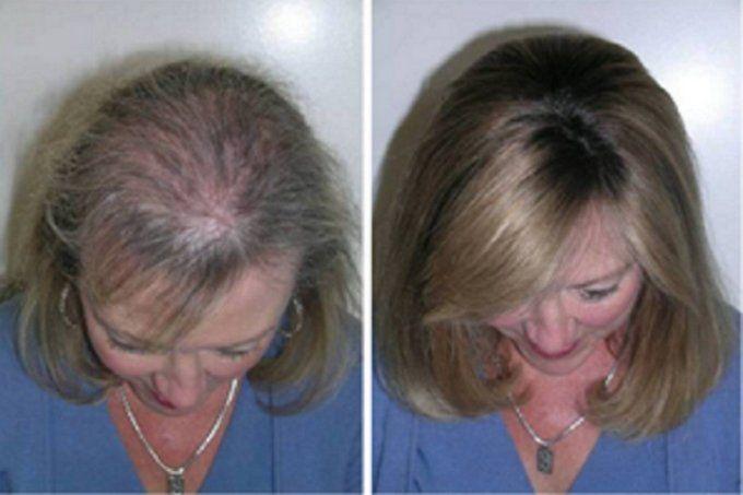Попадая на волосы, касторка благотворно воздействует на волосяные луковицы. Она бережно окутывает каждый волосок, придавая ему гладкость и ухоженность. Это масло эффективно влияет и на спящие луковицы, стимулируя их активный рост. Узнайте как правильно ухаживать за волосами с помощью этого средства… Касторовое масло для длинных ресниц Наносить масло следует перед сном, предварительно смыв макияж. Для нанесения можно воспользоваться кисточкой от …