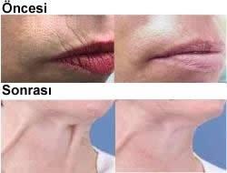 Liposuction ve g zellik http www conturkliniken se kropp