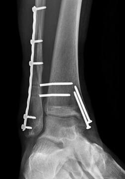 Broken ankle fixation