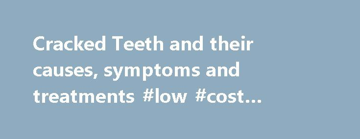 Cracked Teeth and their causes, symptoms and treatments #low #cost #dental #insurance  #cracked tooth # For tooth abscess, gum problems, receding g