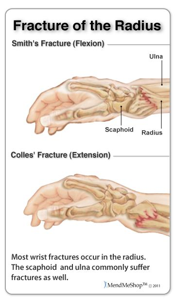 One cause of carpal tunnel syndrome - fracture of the radius. A fracture to any of the wrist bones can reduce space in the carpal tunnel from the outside and cause CTS. #carpaltunnel #wristfracture