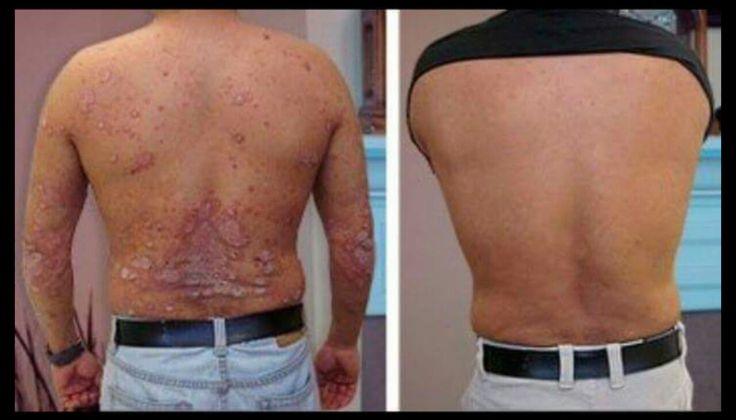 Mejora tu piel,mejora tu organismo,mejora tu salud..