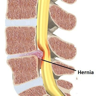 En la HERNIA DISCAL LUMBAR. También puede aparecer debilidad muscular en la misma zona, que empieza a nivel lumbar y glúteo y puede afectar a toda la pierna. Otro de los síntomas más habituales es el entumecimiento u hormigueo (parestesias) que se inician a nivel de la cadera y se extienden hasta el pie por la parte posterior de la pierna.