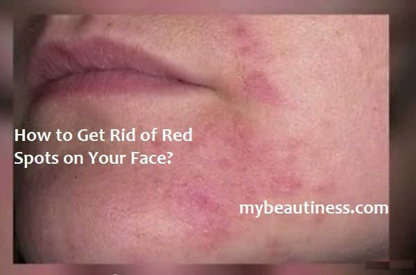 Contents: What Causes of Red Spots on Face? How to Get Rid of Red Spots on Your Face? Home Remedies for Spots on Face For many of us this skin problem is the scourge of all life: from time to time …