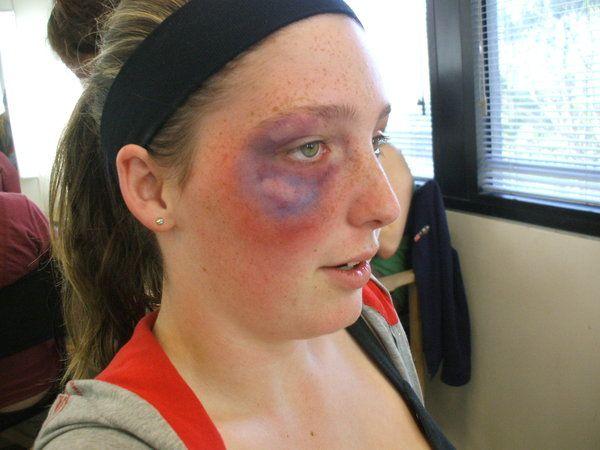 Facial Bruises 21