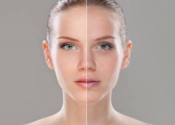 Tutto quello che dovete sapere su sottotono della pelle e fondotinta: quale scegliere, marche e consigli!
