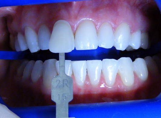 Lo sbiancamento dei denti  con laser per Voi , in Romania !  Il modo migliore e più veloce per avere denti bianchi! Vi invitiamo a vedere di più qui e contattaci subito: http://www.intermedline.com/dental-clinics-romania/ #clinicadentale #clinicadentaleinRomania #clinicaodontoiatrica #clinicaodontoiatricainRomania #sbiancamentodentale #sbiancamentodentaleinRomania #sbiancamentodidenti #sbiancamentodidentiinRomania #dentista #dentistainRomania #turismodentale #turismodentaleinRomania