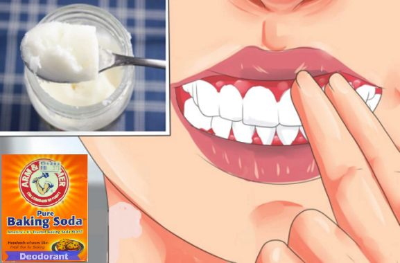 Gingivitis is a result of bacteria in the gums, and it causes gum disease. So you should start treating it in the early stage. The symptoms of gingivitis are: bleeding around the gums, swollen gums, receding gums, and inflammation of the gums. Here are some remedies of how you can treat early stage gingivitis at …