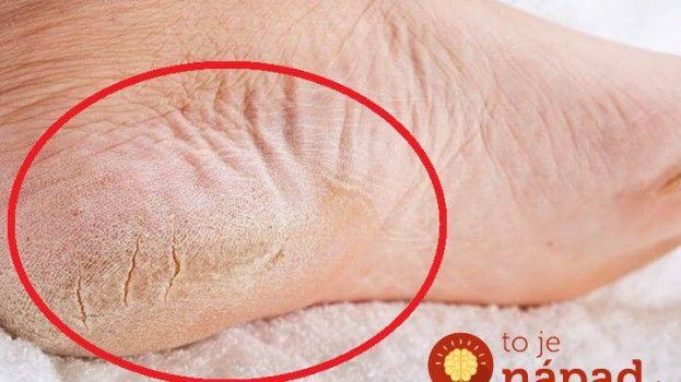 Máte popraskanú a suchú kožu na chodidlách? Vyskúšajte tento jednoduchý trik!