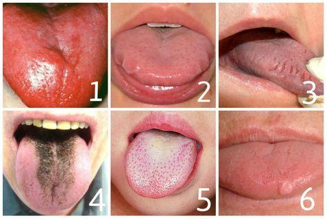 Steek je tong eens naar jezelf uit, hoe hangt die van jou erbij? Dít betekent het: (adsbygoogle = window.adsbygoogle ||...