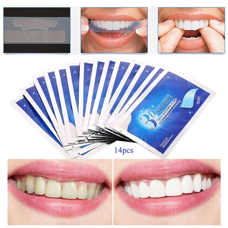 28Pcs/14Pair 3D White Gel Teeth Whitening Strips Oral Hygiene Care Double Elastic Teeth Strips Whitening Dental Bleaching Tools //Price: $21.00 //     Visit our store ww.antiaging.soso2016.com today to stay looking FABULOUS!!! Cheers!!    Message me for details!   #skincare #skin #beauty #beautyproducts #aginggracefully #antiaging #antiagingproducts #wrinklewarrior #wrinkles #aging #skincareregimens #skincareproducts #botox #botoxinjections #alternativetobotox  #lifechangingskincare…
