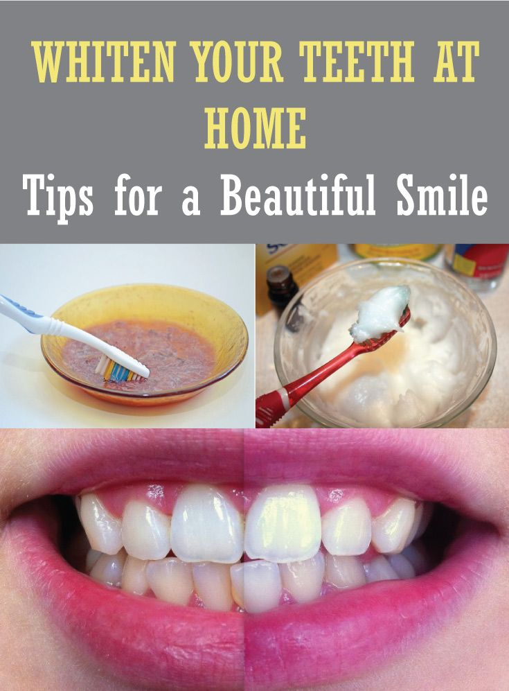 WHITEN YOUR TEETH AT HOME – Tips for a Beautiful Smile