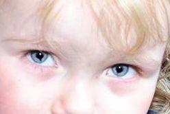 Bilateral coloboma of the iris