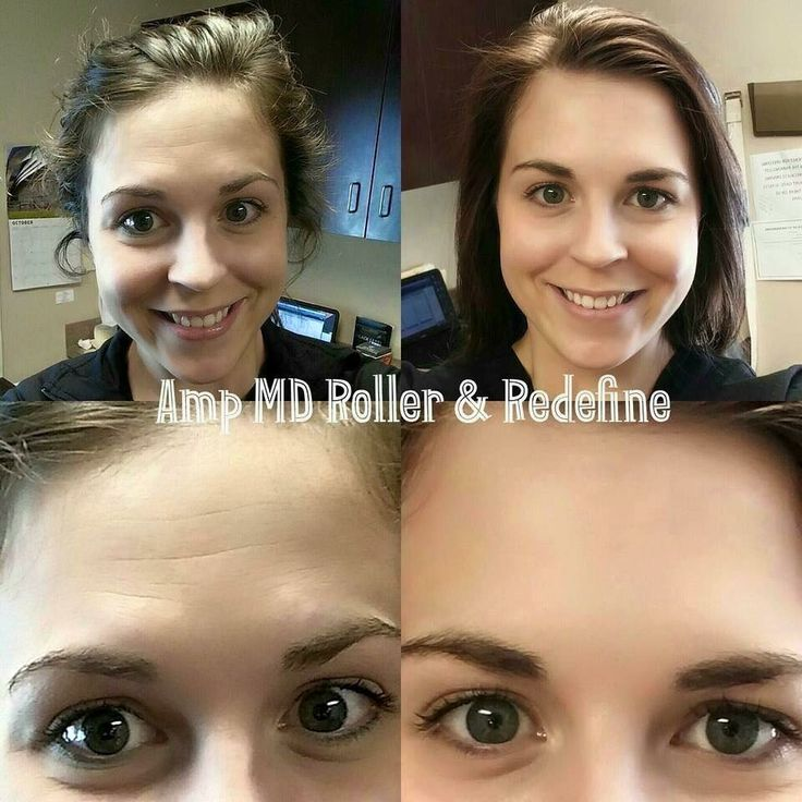 "Thinking about ordering the Amp MD Roller?  Wondering if it's really as good as I say?  Here's what one satisfied customer has to say:  ""YOU GUYS! I'm so excited to share this before/after! I was going to wait a full week but I couldn't contain my excitement! I have been using our Redefine Regimen for almost 4 months now but recently decided to add in the Amp MD Roller to tackle my stubborn forehead wrinkles! These are my results AFTER ONLY 5 NIGHTS of using the Amp MD Roller"