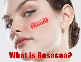 We answer your burning questions on one of the most common skin conditions - Rosacea http://larabeauty.wordpress.com/2014/08/06/what-is-rosacea/