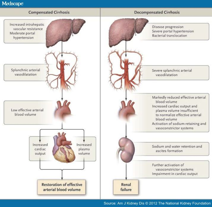 causes of cirrhosis | ... Syndrome: A Cause of Kidney Failure in Cirrhosis: Pathophysiology