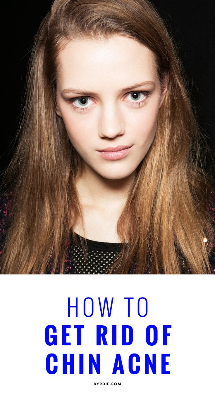 How to get rid of chin breakouts once and for all