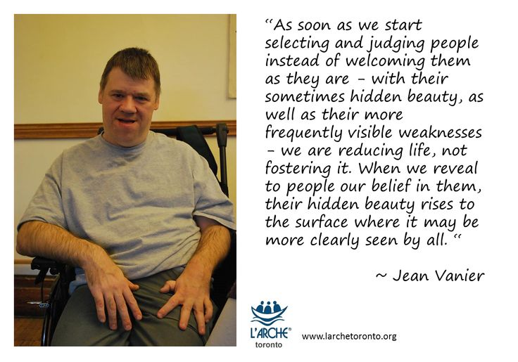 """""""As soon as we start selecting and judging people instead of welcoming them as they are - with their sometimes hidden beauty, as well as their more frequently visible weaknesses - we are reducing life, not fostering it. When we reveal to people our belief in them, their hidden beauty rises to the surface where it may be more clearly seen by all. """"  ~ Jean Vanier #quotes #vanier #larche"""