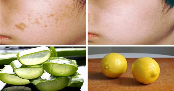 Brown spots generally appear on exposed skin areas like ...