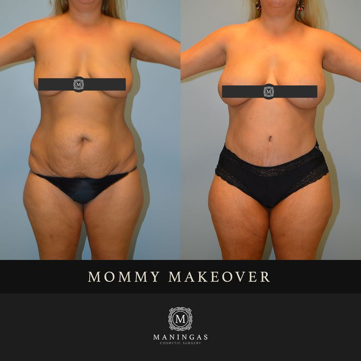 """Age: 42  Height: 5'4""""  Pre-Op Weight: 180 lbs.  Procedure 1: Abdominoplasty with Core Liposuction  Procedure 2: Breast Augmentation  This 42 year old female presented for concerns of abdominal fullness, excess adipose tissue, and loose abdominal skin after multiple pregnancies. She had a history of 2 pregnancies with 2 vaginal deliveries. She was noted to have a small peri-umbilical hernia on her exam. This excellent result was achieved with core liposuction and abdominoplasty (tummy tuck)…"""