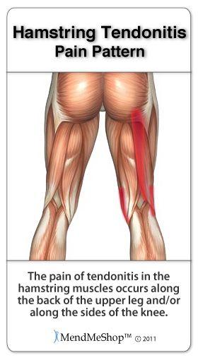 Aidyourhamstring Com Hamstring Tendinitis Symptoms And