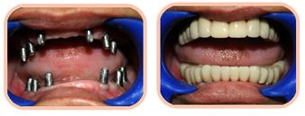 We Have Best Dentist Ahmedabad, India for Dental Implants, Dental Implants Treatment & for any Dental Problems.
