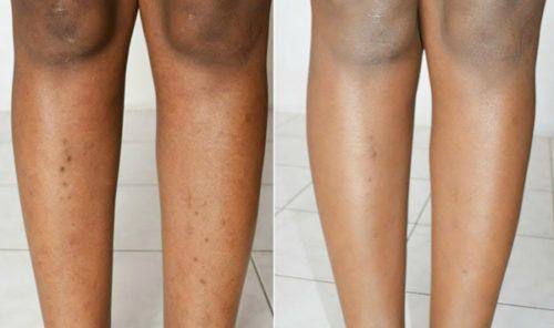 8 Ways to Get Rid Of Dark Spots on Legs Fast