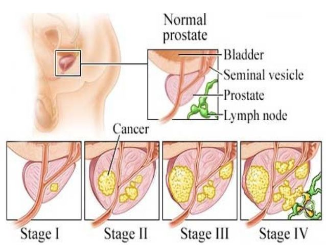 New Onset of Erectile Dysfunction in a Cohort of Patients Enrolled in Active Surveillance for Low Risk Prostate Cancer
