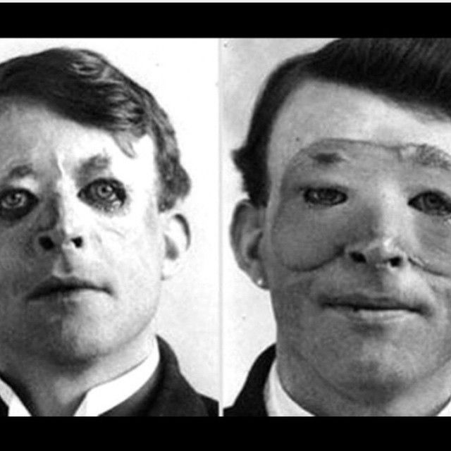 """The first plastic surgery was performed way back in 1917 on Walter Yeo, a soldier who sustained severe facial injuries in World War I. He is thought to be the first person to benefit from a new form of skin grafting developed by Sir Harold Gillies AKA the """"father of plastic surgery."""" Thank goodness we've come a long way from this…"""