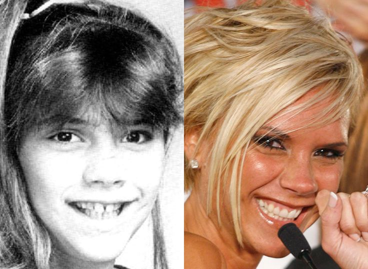 Celebrity Teeth: Before And After | Victoria beckham, Victoria and Celebs