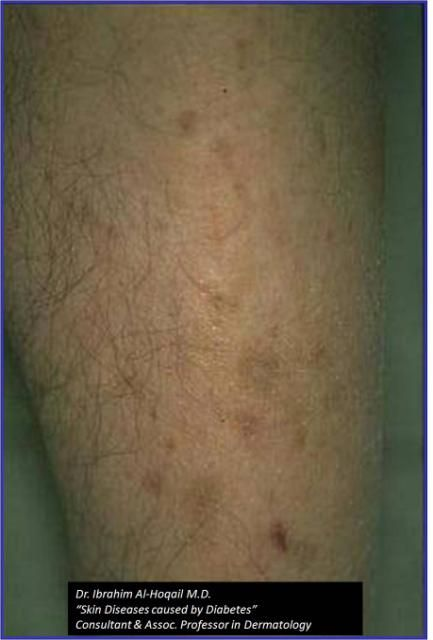 Diabetic Dermopathy-Also called shin spots, this condition develops as a result of changes to the blood vessels that supply the skin. Dermopathy appears as a shiny round or oval lesion of thin skin over the front lower parts of the lower legs. The patches do not hurt, although rarely they can be itchy or cause burning. Treatment generally is not necessary.