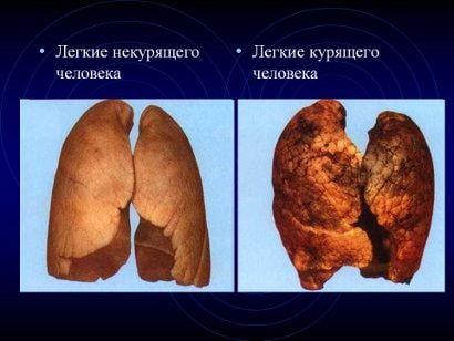 Как выглядят #легкие #здорового человека и чем болеют легкие #курильщика
