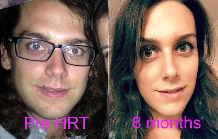 Before and after 8 months of HRT, lost 40 lbs in the process too. Never felt this happy in my life!