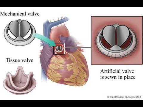 Minimally Invasive Thoracotomy Aortic Valve Replacement