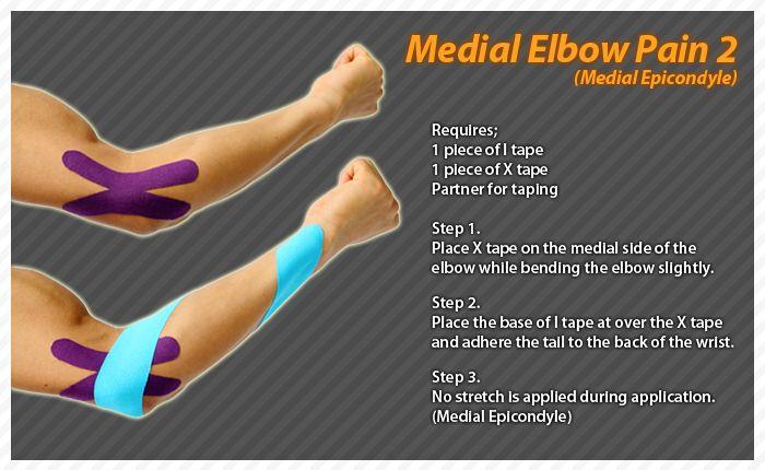 kt tape tennis elbow pdf