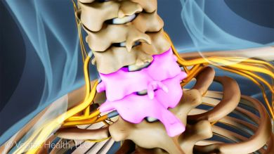 The C6-C7 spine level provides the neck with structural support and flexibility. This lower portion of the cervical spine is quite mobile, so it is at an elevated risk for becoming a source of pain.