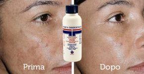 acqua ossigenata macchie pelle