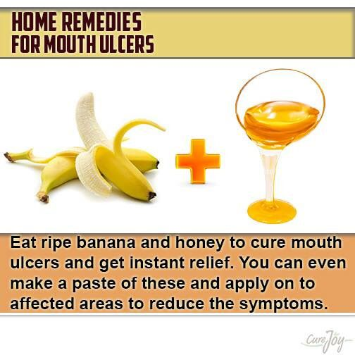 For mouth ulcers