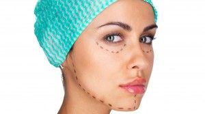 Discover 6 surprising facts about facelift sugery: http://8west.ca/facelift/six-surprising-facts-about-facelift-surgery/?utm_campaign=coschedule&utm_source=pinterest&utm_medium=Dr.%20Buonassisi%20%7C%20Fiore%20Skin%20Clinic%20and%208%20West%20Cosmetic%20Surgery