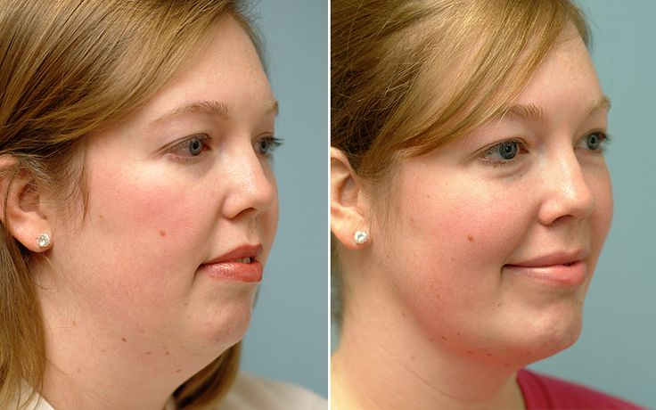 Chin Liposuction Cost