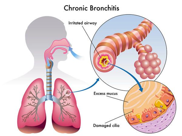 Bronchiectasis is caused by an infection or other condition that injures the walls of the airways or prevents the airways from clearing mucus.