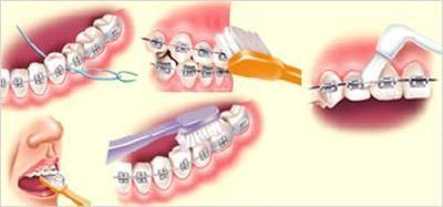 higienizacao e fio dental pra aparelho fixo