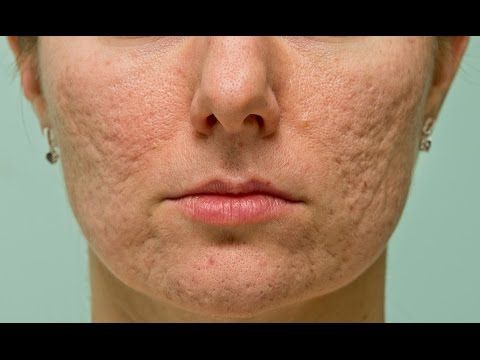 What to Eat to Remove Acne