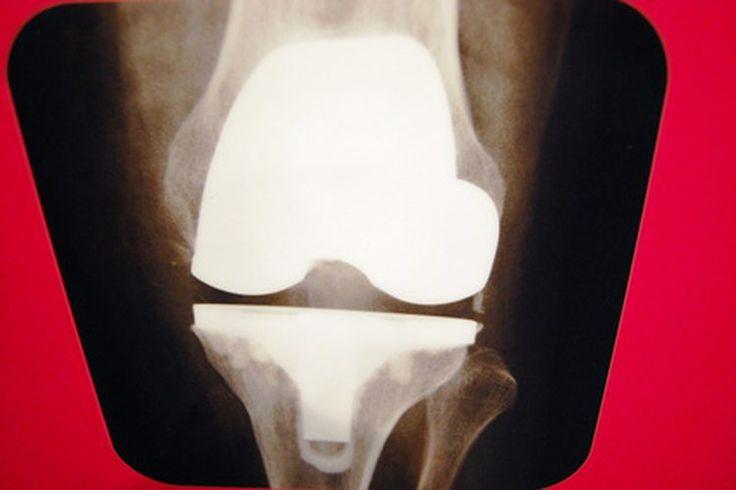 Dolor severo en la rodilla, pantorrilla y tobillo en los adultos | Muy Fitness